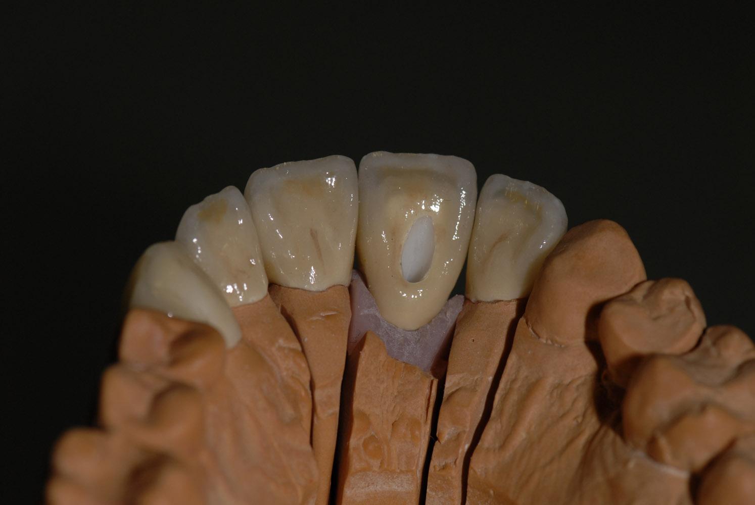 Coronas dento y implantosoportado