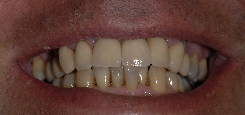 Coronas dento y implantosoportadas