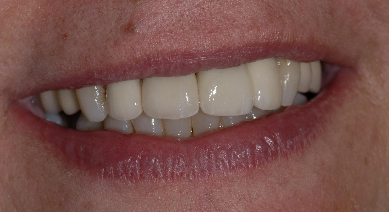 Coronas dento e implantosoportado