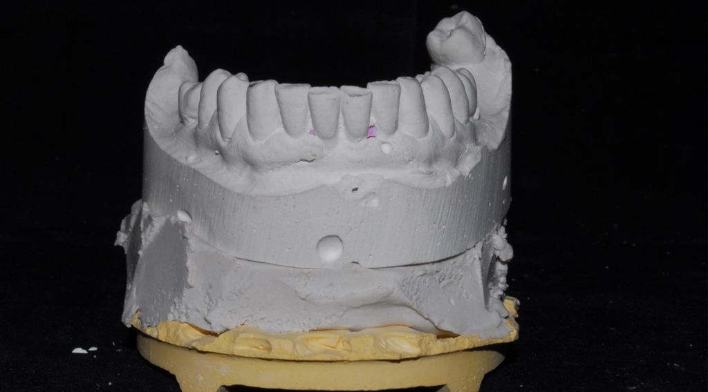 Mandibula inferior antes de extraccionde todo los dientes para carga inmediata